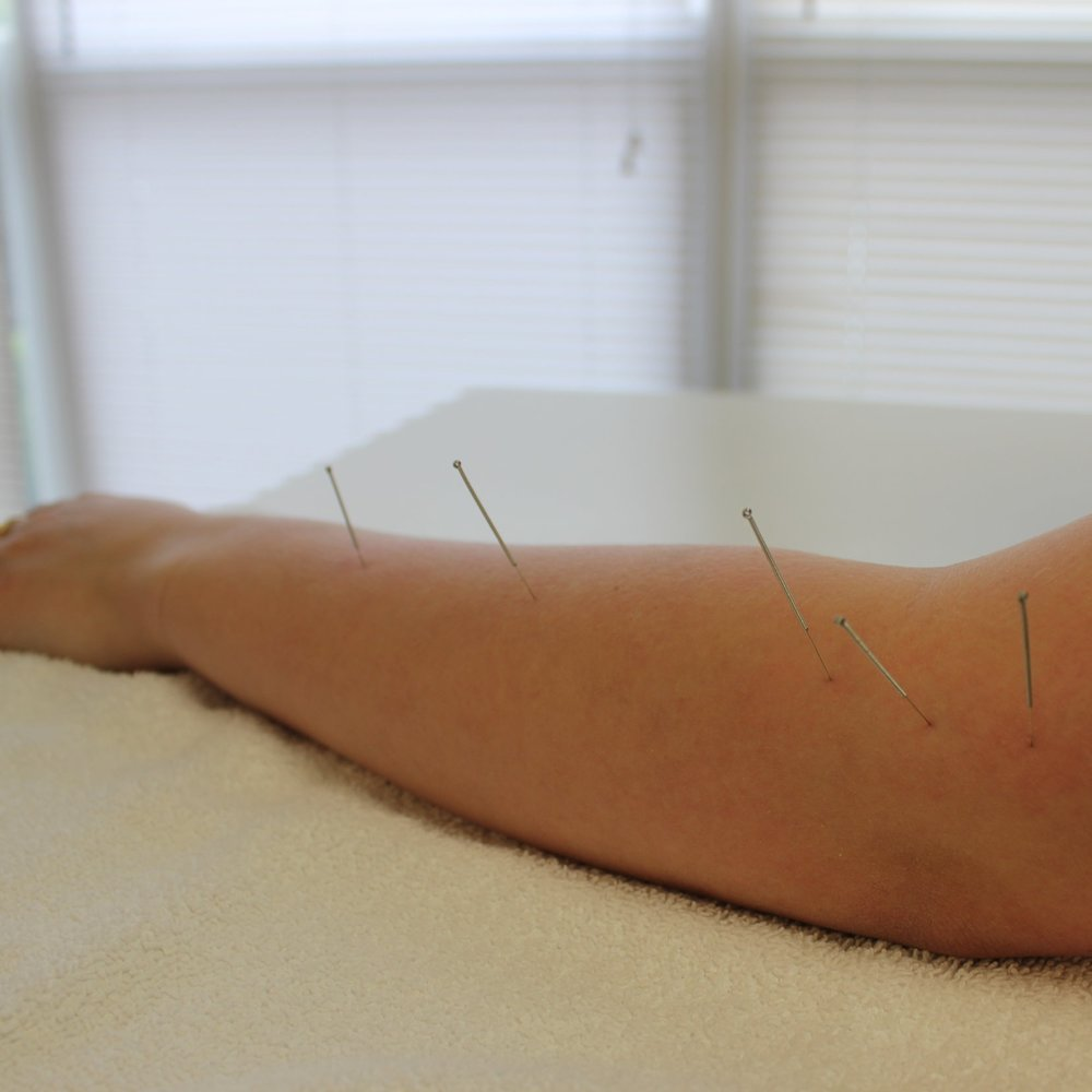 DRY POINT NEEDLING - Dry Point Needling (DPN) is a western, medical term that is used to differentiate from traditional acupuncture. Dry Point Needling is also used to differentiate from Wet Needling, where medicine or fluid is being injected to the site.Learn More >