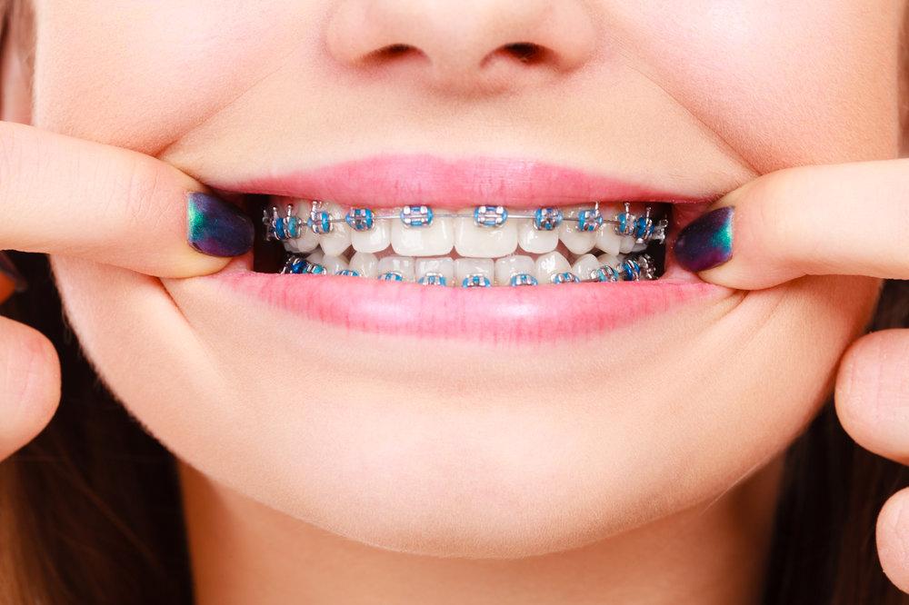 fixed braces.jpg