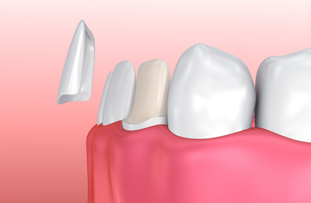 Veneers - Veneers are an extremely thin piece of porcelain that is fitted on the outer surface of your tooth for a number of different purposes from improving the appearance of stained or crooked teeth to strengthening them and hiding cracks. They require very little prior preparation and can be completed in just two visits to the practice..