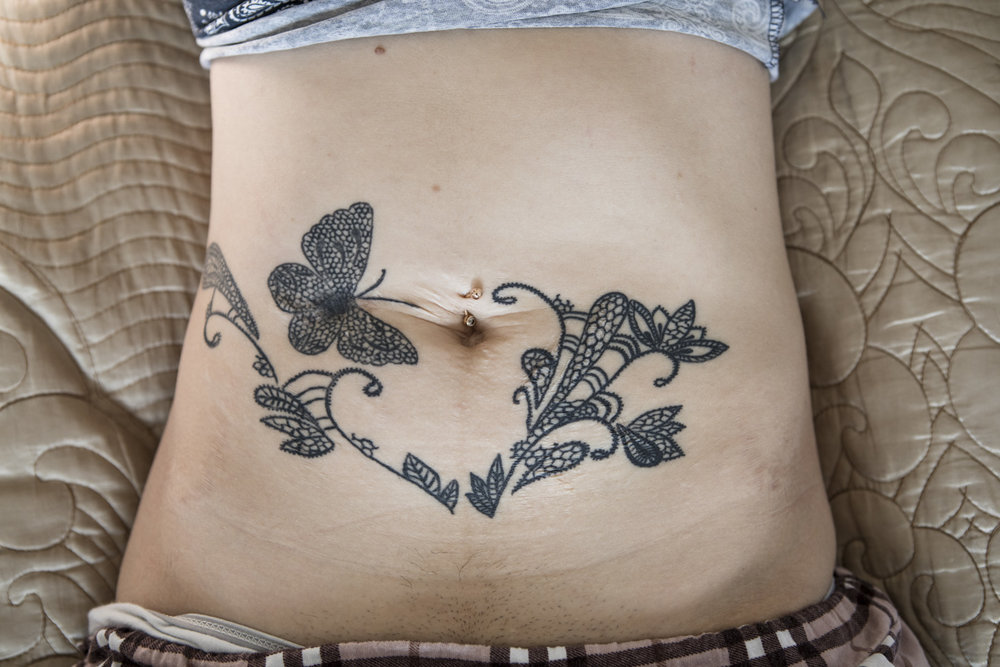 In the center of the butterfly is the deep scar from the stabbing. The rest of the tattoo covers smaller cuts and scars.