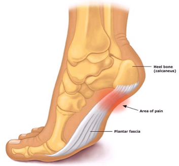 plantar-fasciitis-treatment.png