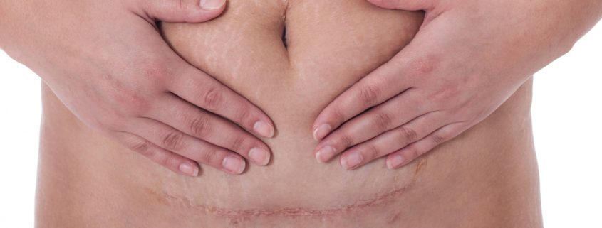 c-section-scar-845x321.jpg
