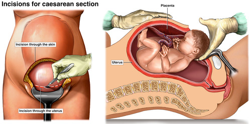 diagram-caesarean.jpg