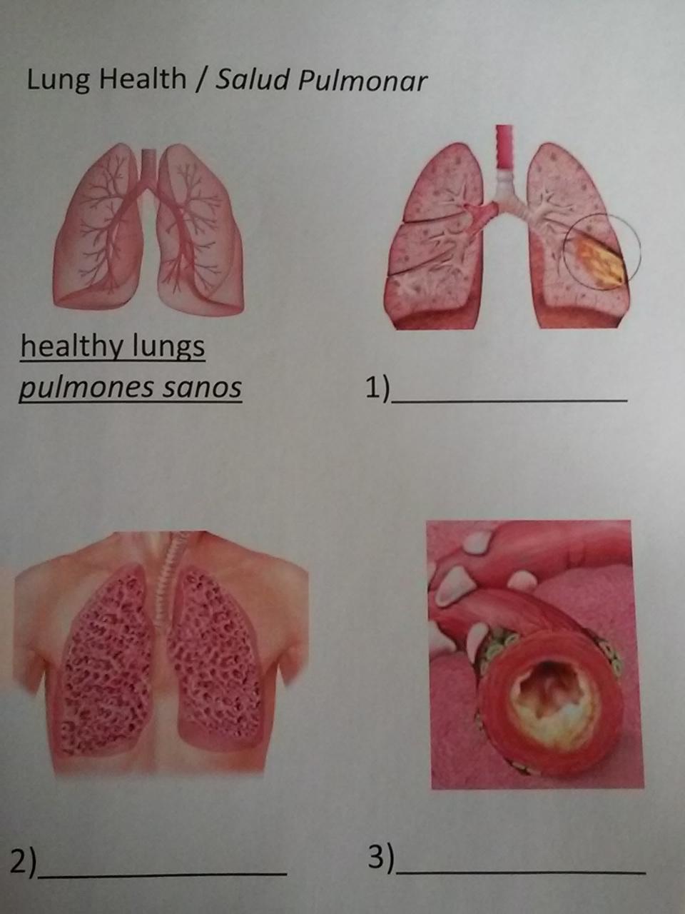 20150205_Lung-Health-8.jpg