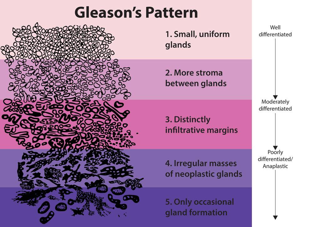 Gleason Score.jpg