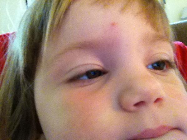 Cute face, now swollen. Stupid bugs.