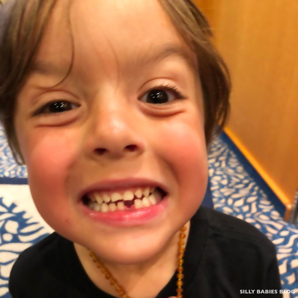 Sebastian lost a Tooth