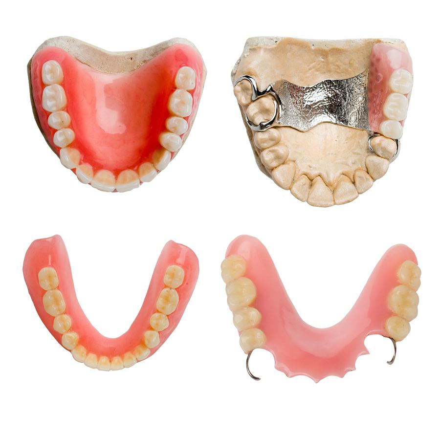 Dental Prosthetics