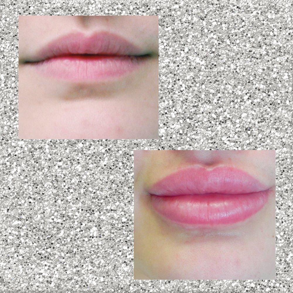 PRP Lip fillers