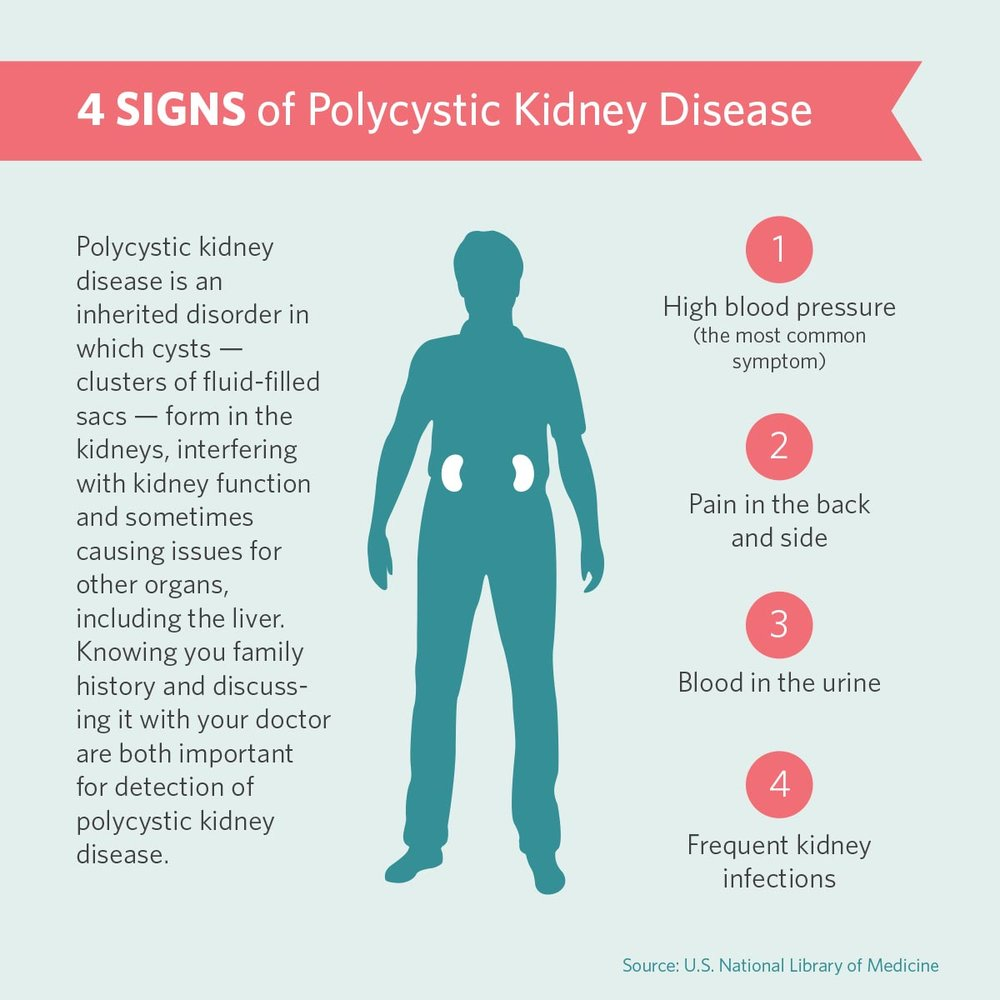 - Symptoms of Polycystic Kidney Disease →