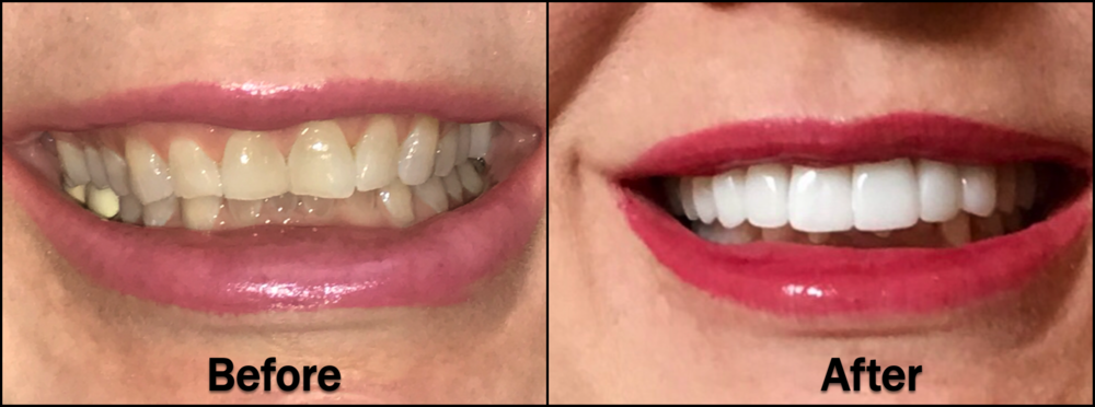 A current Lone Star Family Dental patient recently completed a cosmetic full-mouth case procedure.