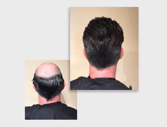 tovani-hair-loss.jpg