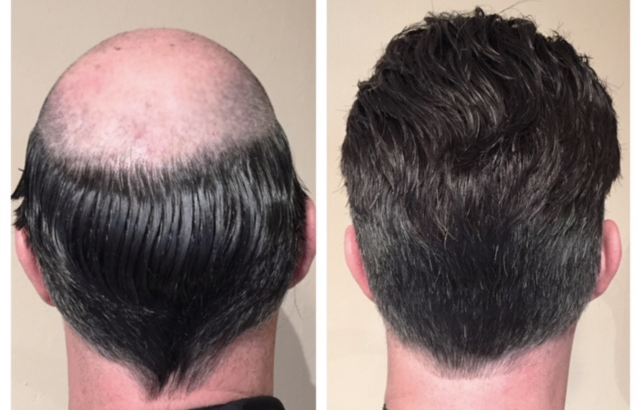 tovani-hair-hairloss.jpg