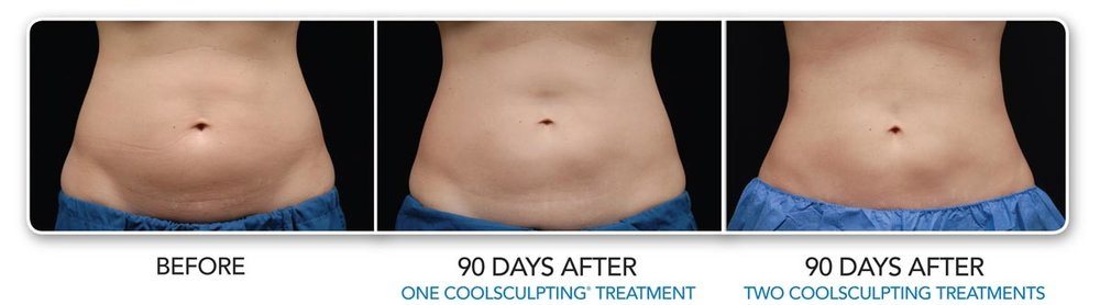 ba-coolsculpting-01.jpg