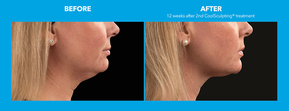 01coolsculpting-face.jpg