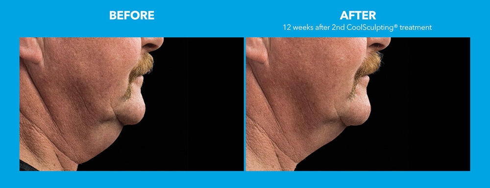 06coolsculpting-face.jpg