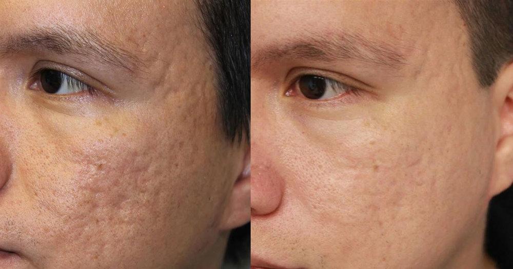 02-acne.jpg