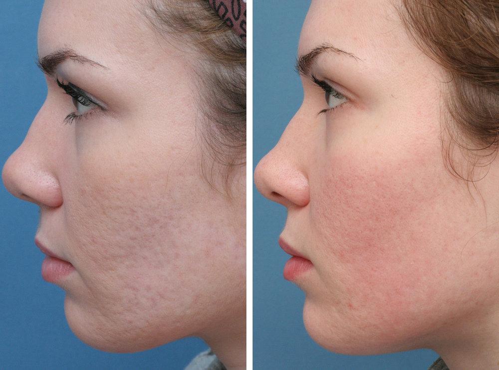 01-acne.jpg