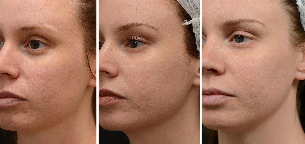 03-acne.jpg