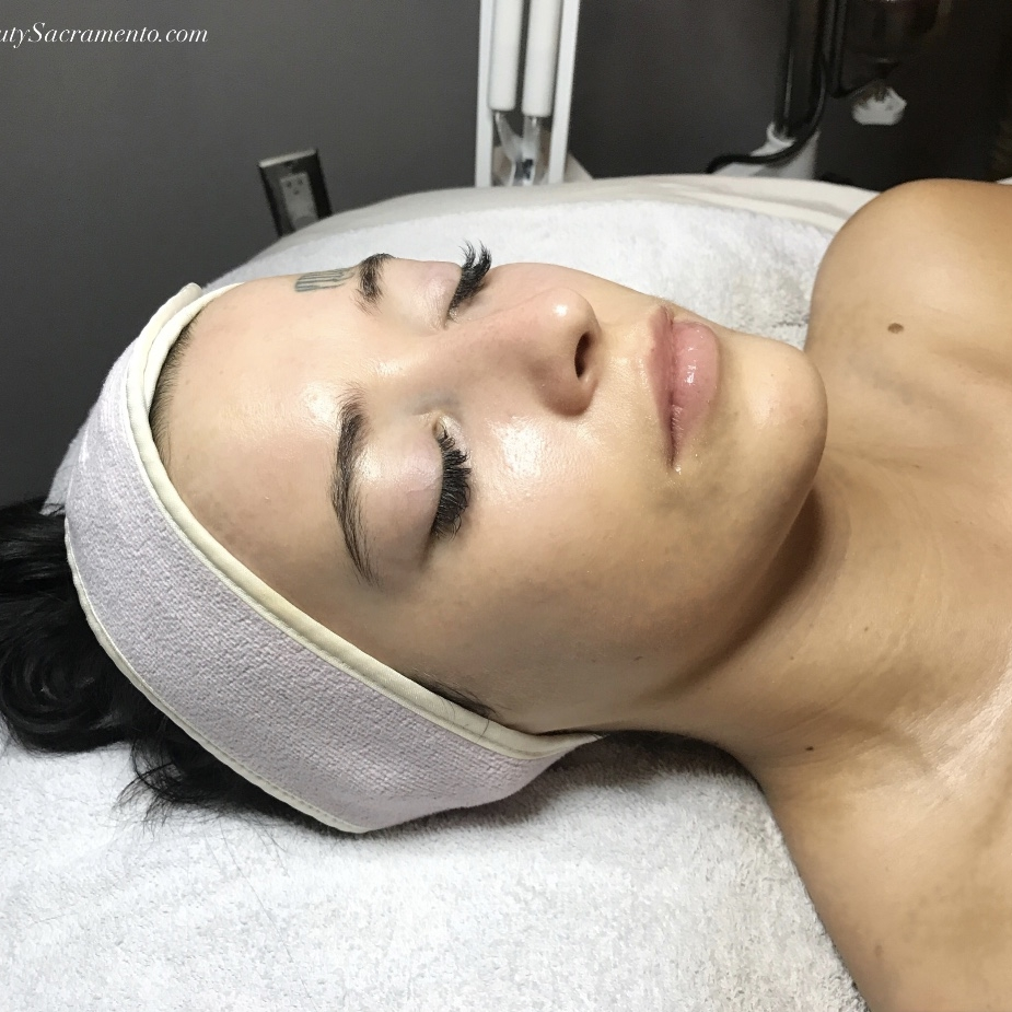 Chemical Peels - Chemical peels are used for clients who have deeper skin concerns and are looking to dramatically change their skin. The solution is used to remove the outermost layers of skin to improve texture, scarring, acne, and slow the appearance of aging skin.