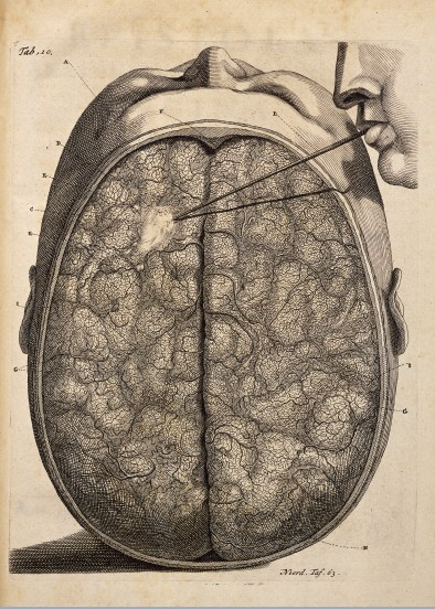 Brain 1744 / Wellcome Images