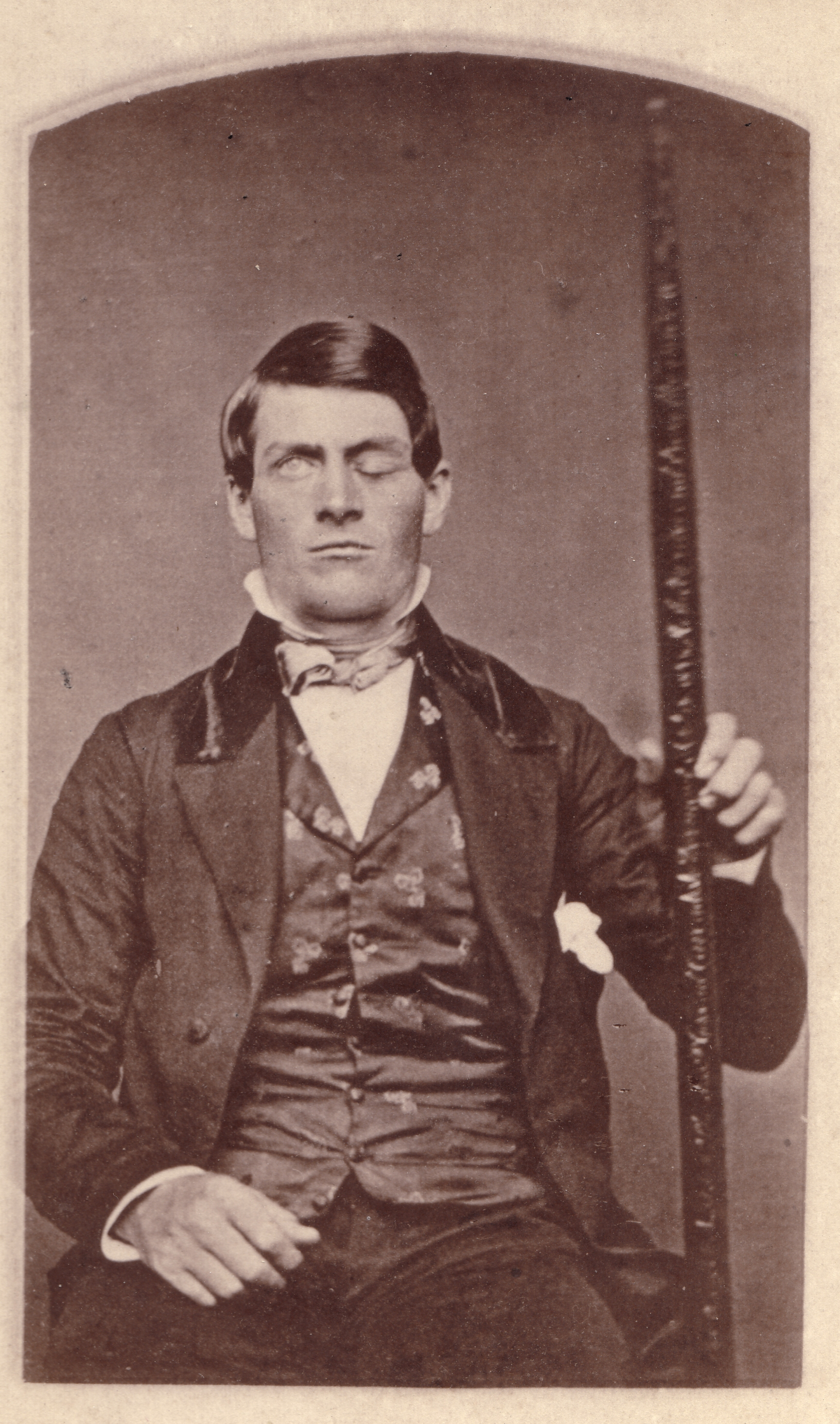 Phineas Gage / Unknown Photographer