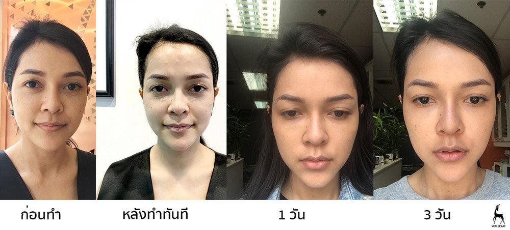before-after คุณหญิง.jpg