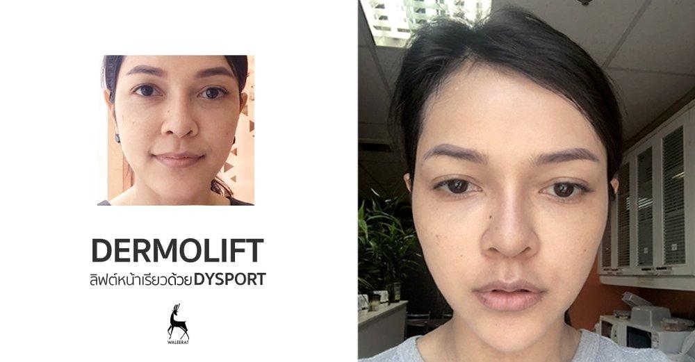 Dermolift ลิฟต์หน้าเรียวด้วย Dysport.jpg