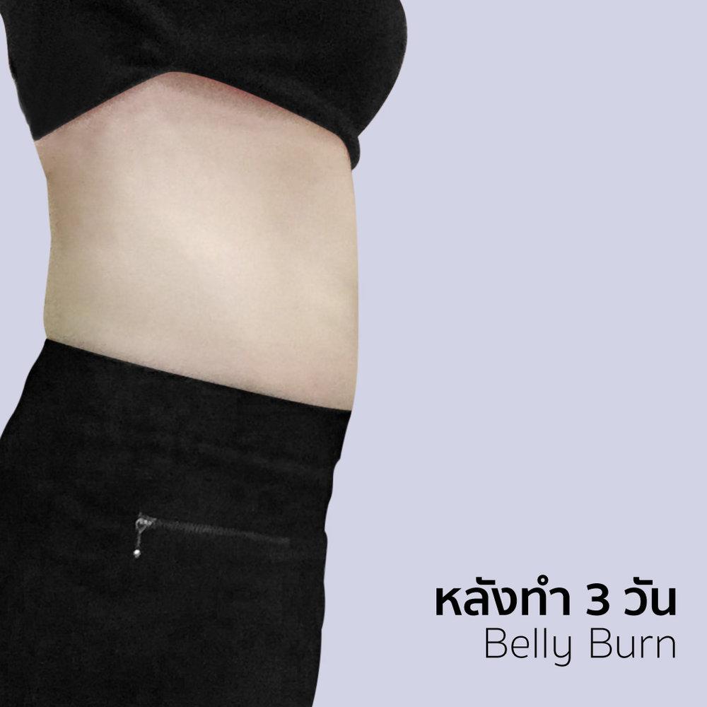 Belly burn หุ่นเพรียว ไม่กลัวเผละ