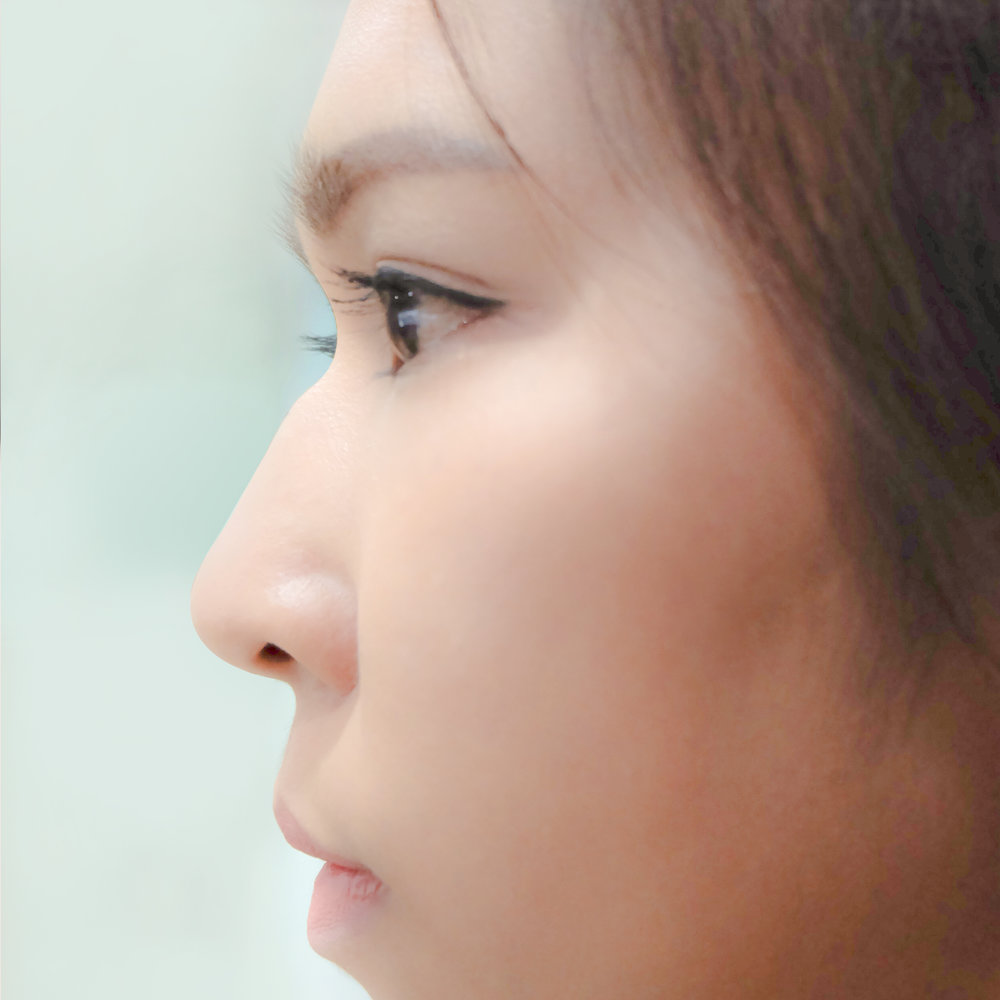 diamomd nose_เสริมจมูก แก้ฮัมพ์_Before.jpg