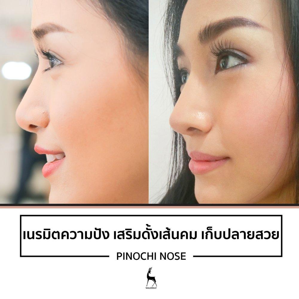 pinochi nose_เนรมิตความปัง เสริมดั้งเส้นคม เก็บปล.jpg