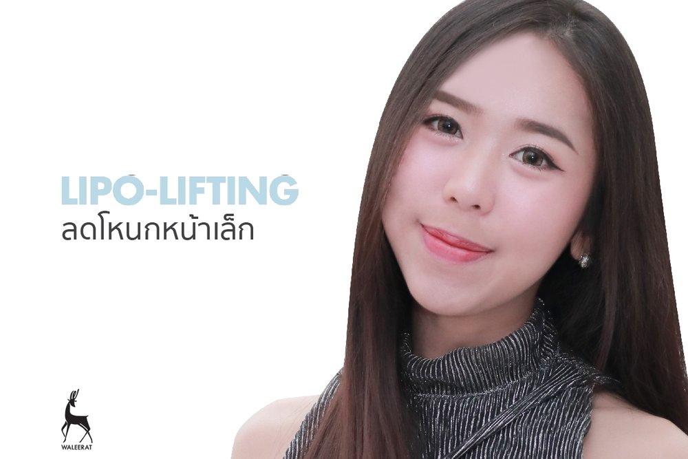 Lipo Lifting