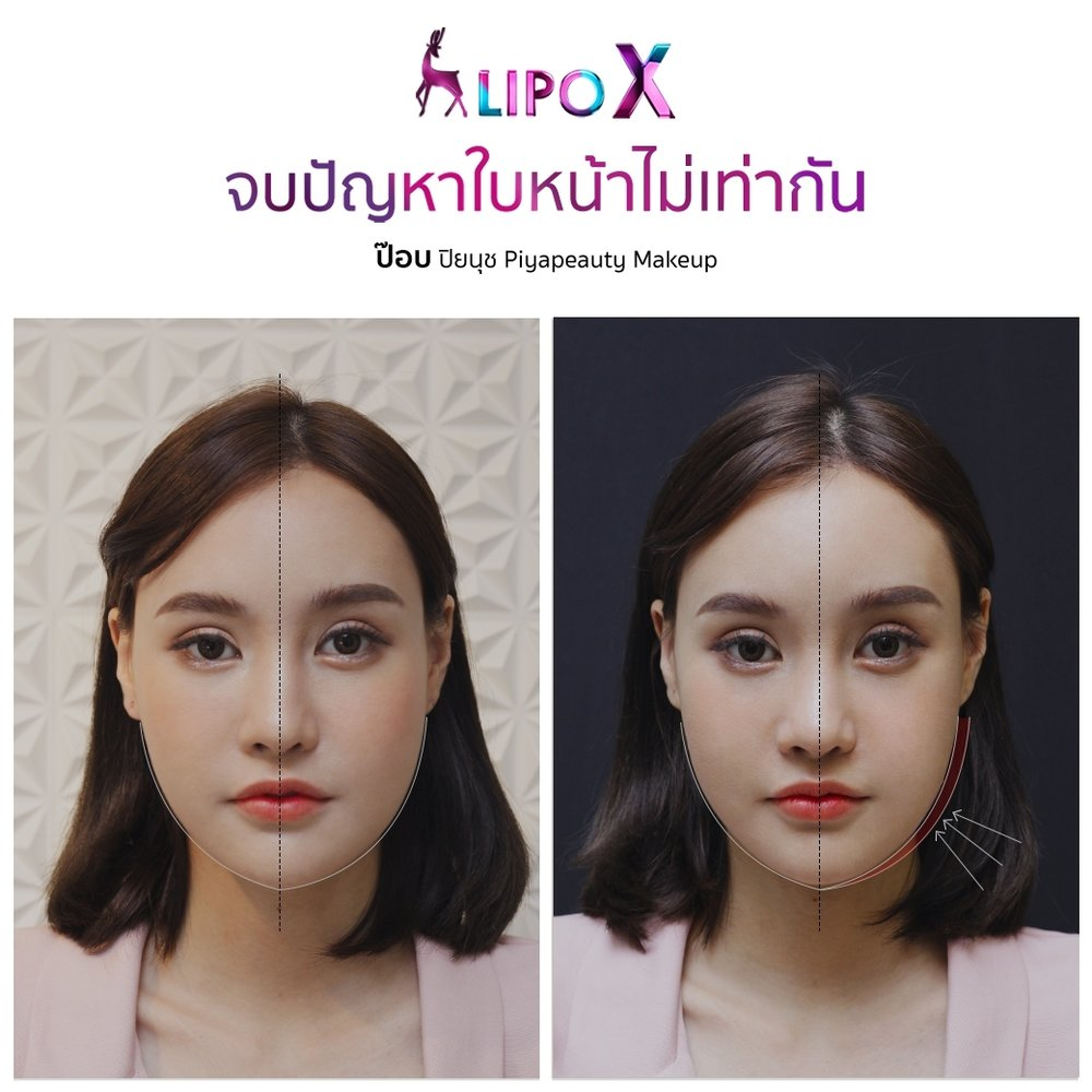 จบปัญหาใบหน้าไม่เท่ากัน Lipo X-ป๊อบ ปิยนุช Piyapeauty Makeup