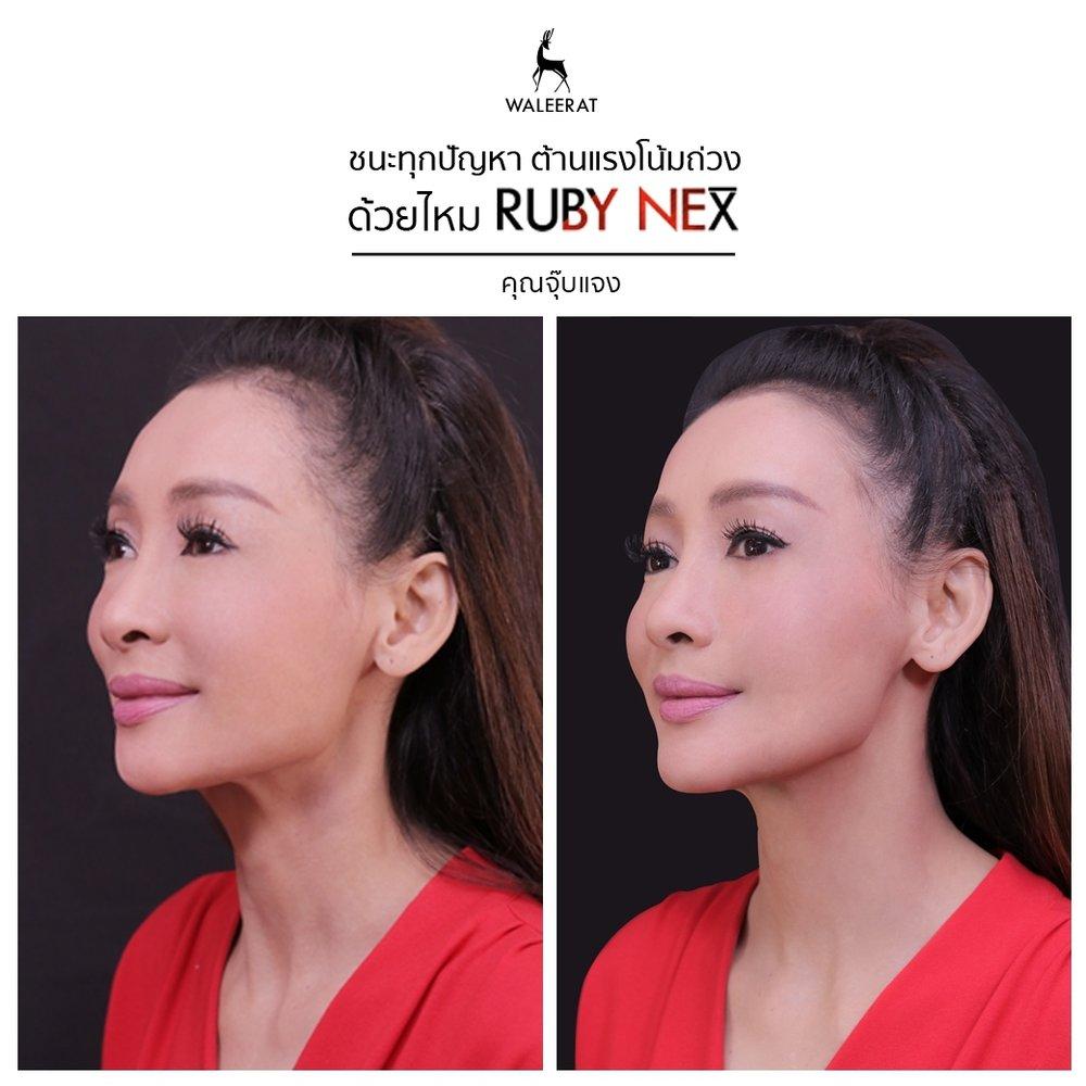 Ruby neX - จุ๊บแจง วิมลพันธ์