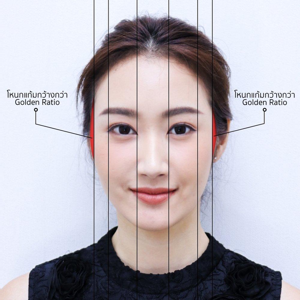 face symmetry.jpeg