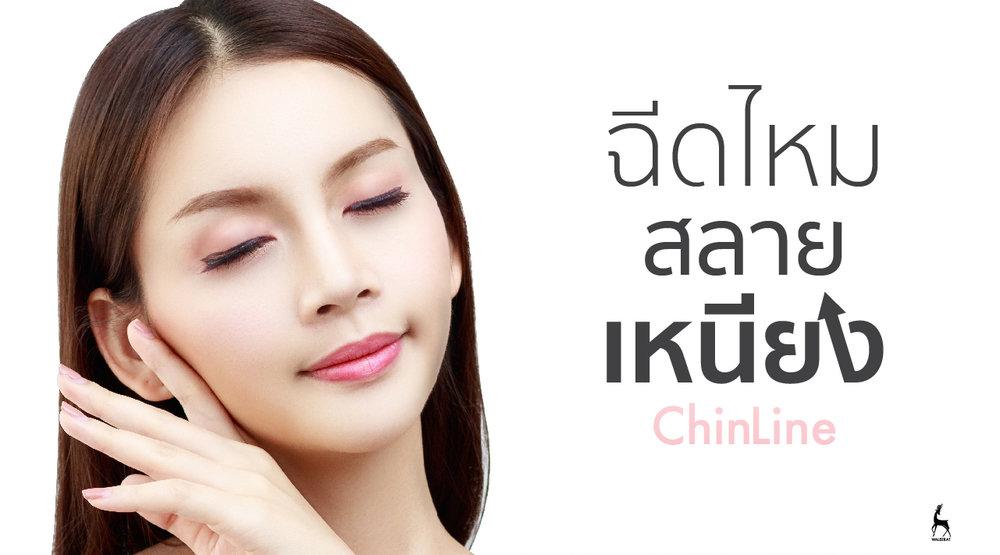 Chinline