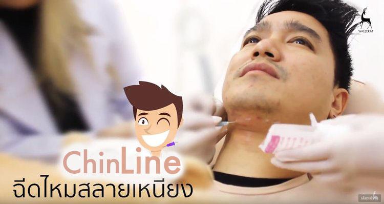 ChinLine+เอ๊ะ+จิรากร+.jpg