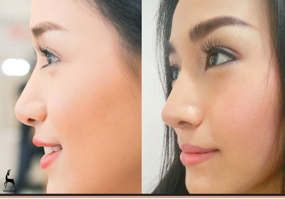 pinochi+nose.jpg