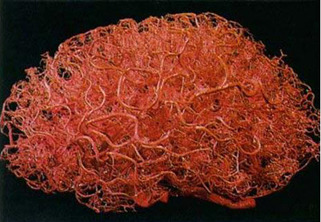 3d printed vasculature blood vessels.jpg