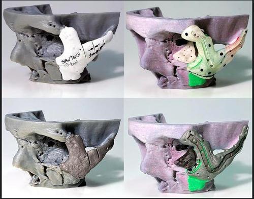 5. surgical models.jpg