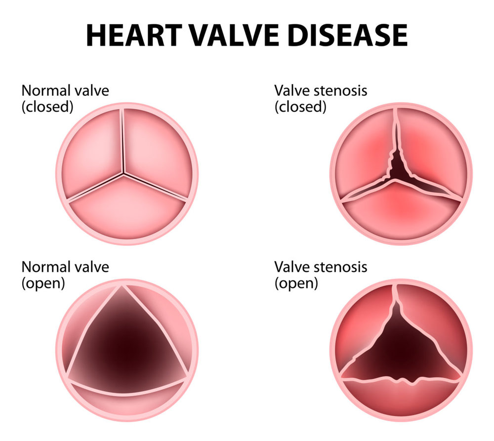 Heart-Valve-Disease-allevi blog.jpg