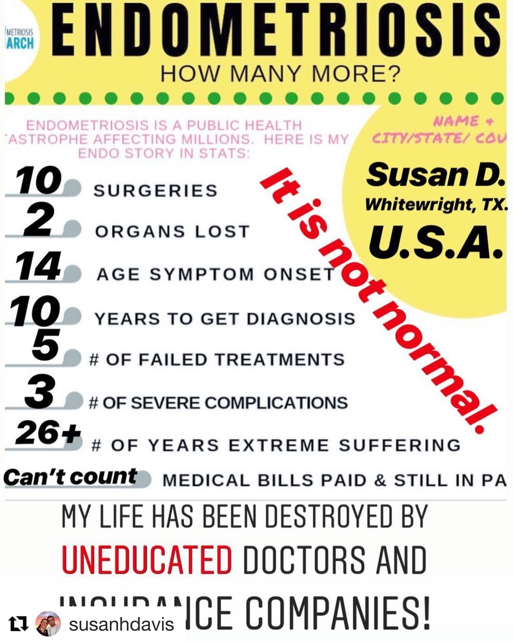 endo story in stats susan d texas.JPG