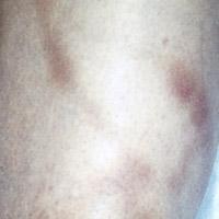 phlebitis.jpg