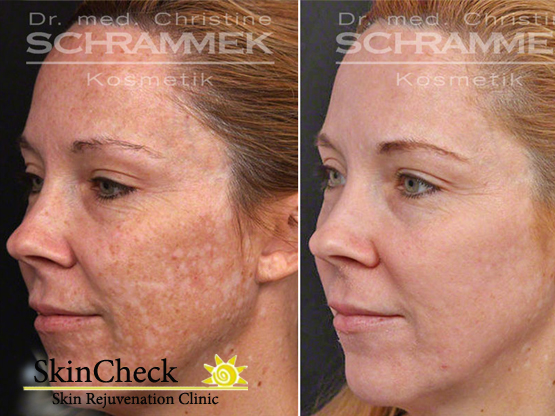 Skincheck-skin-rejuvenation-clinic-green-peel-facial-before-and-after.jpg