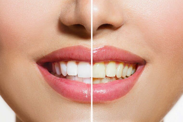 A  mouth is shown comparing yellow teeth to whiter teeth.