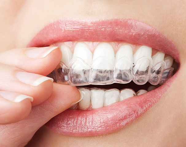 A woman is putting a teeth whitening tray on her upper teeth.