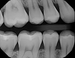 An x-ray of teeth is shown.
