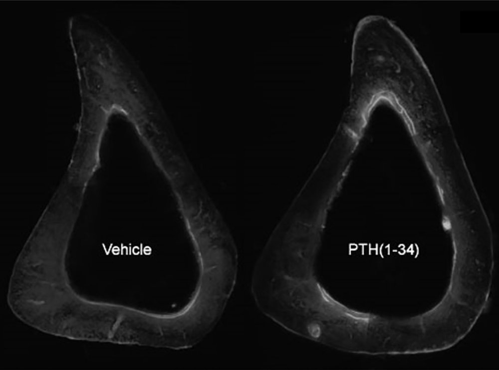 PTH and bone remodeling.jpg