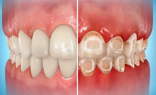 miami-orthodontist-decalcification-with-braces.jpg