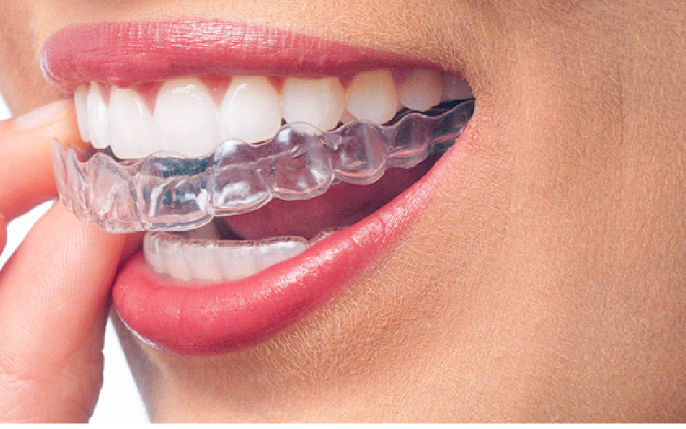 invisalign-questions-answered.jpg